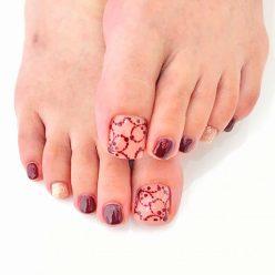foot-nail03